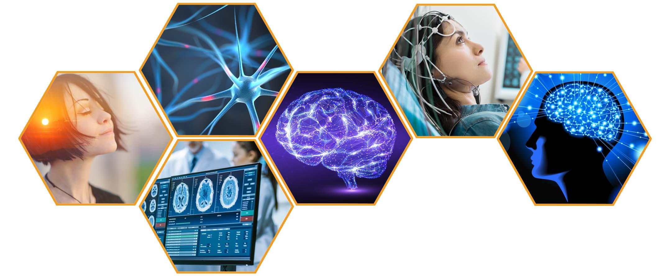 Summit Brain Health, San Carlos CA